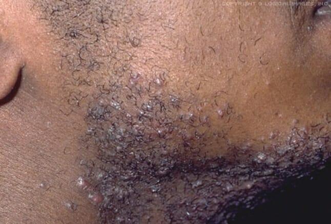 black man beard ingrown hair